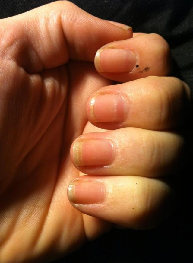 nails before2